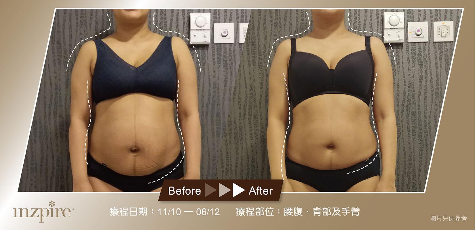 Inzpire 經絡深層刮痧排毒護理 網上優惠 瘦身修身減肥產後 對比圖