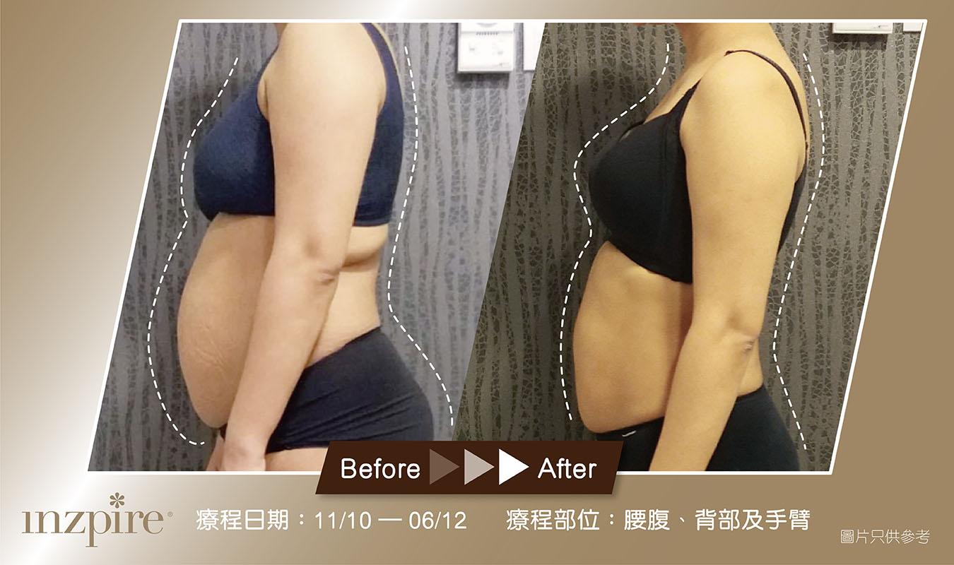 Inzpire 經絡深層刮痧Inzpire 經絡深層刮痧排毒護理 網上優惠 瘦身修身減肥產後 對比圖毒護理 網上優惠 瘦身修身減肥 對比圖