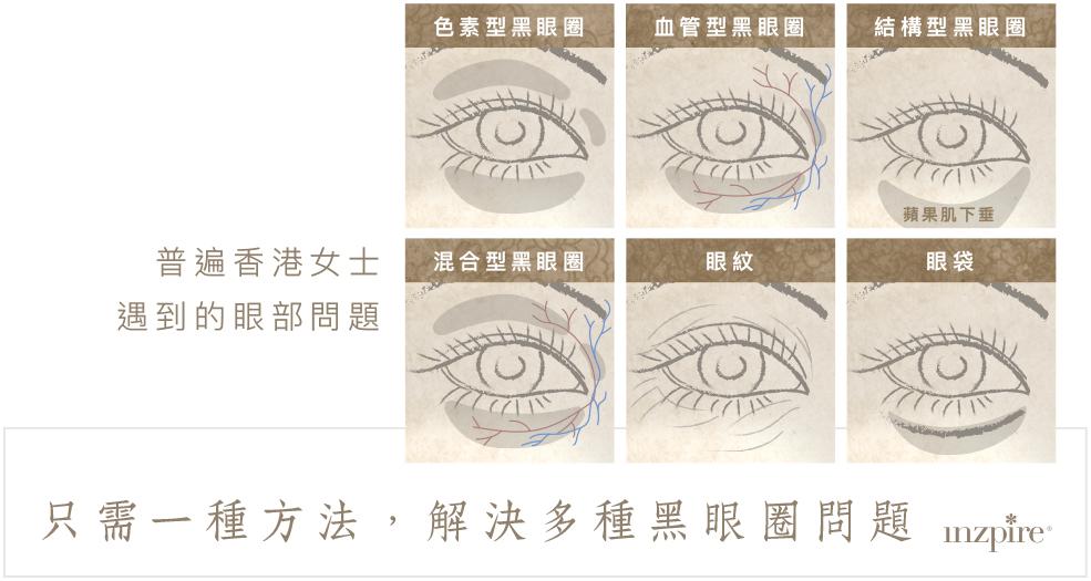 Inzpire 經絡磁療活眼經療法 優惠推廣 去眼袋 去黑眼圈 常見眼部問題