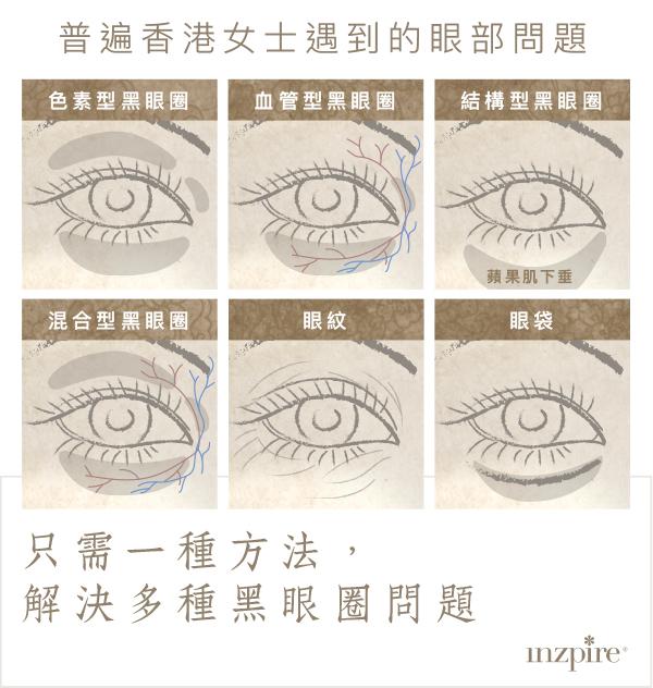 Inzpire 經絡磁療活眼經療法 優惠推廣 常見眼部問題 去眼袋 去黑眼圈