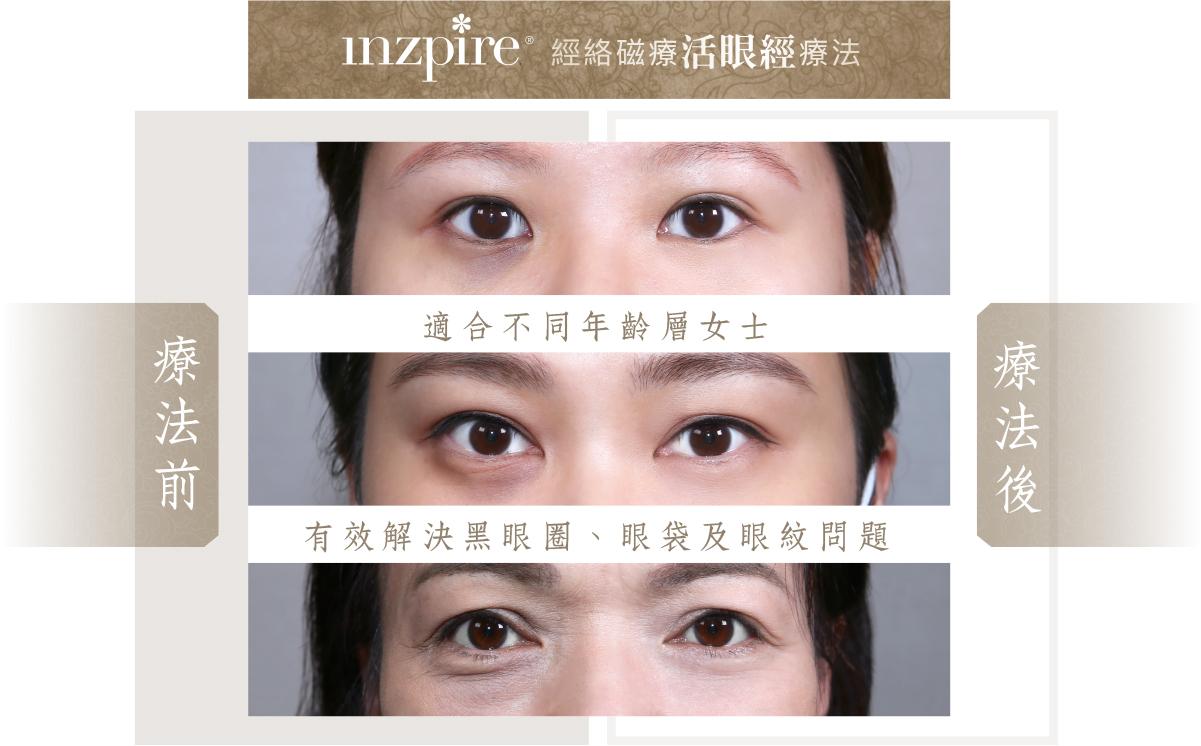 Inzpire 經絡磁療活眼經療法 推廣優惠 療程前後 去眼袋 去黑眼圈