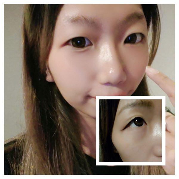 經絡磁療活眼經療法